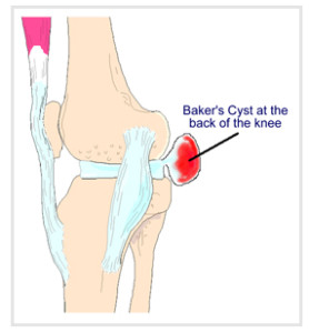 Bakers_cyst