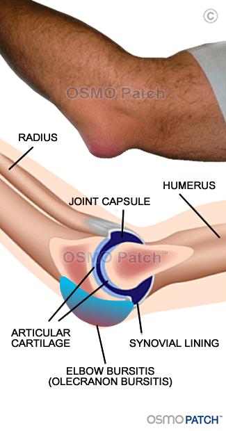 Elbow Bursitis - OSMO Patch - UK
