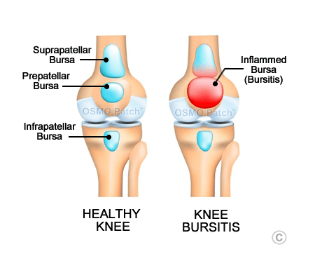 Knee Bursitis - OSMO Patch