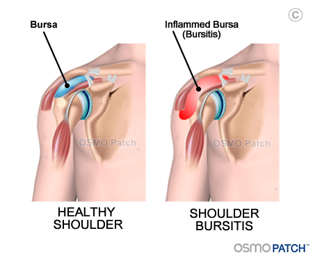 Shoulder Bursitis before & after - OSMO Patch - UK