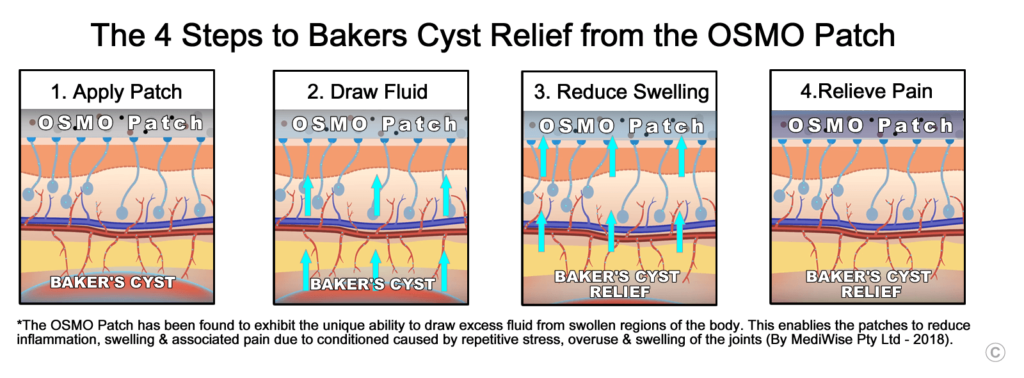 Baker's Cyst Relief - OSMO Patch