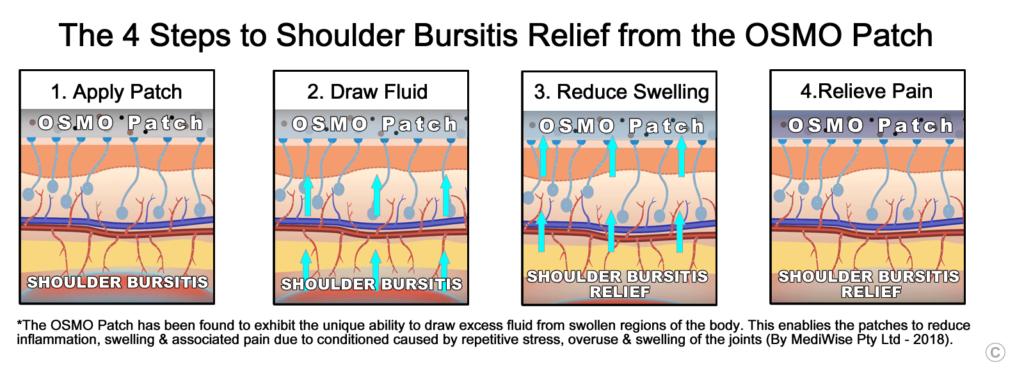 Shoulder Bursitis Relief - OSMO Patch